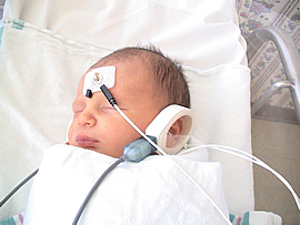 Newborn Hearing Screening